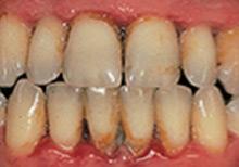 preventing-periodontal